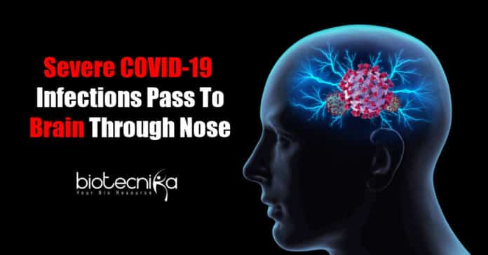 COVID-19 infects brain cells