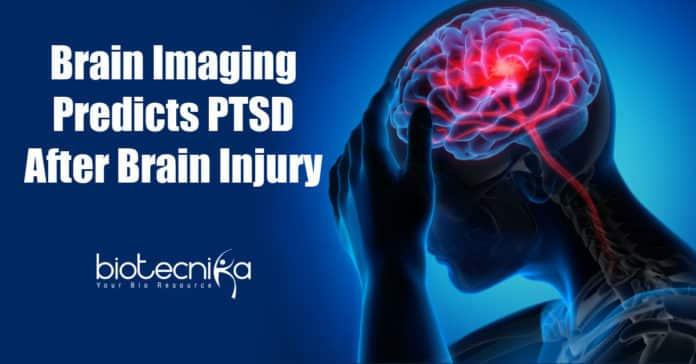 Predicting PTSD after Brain injury